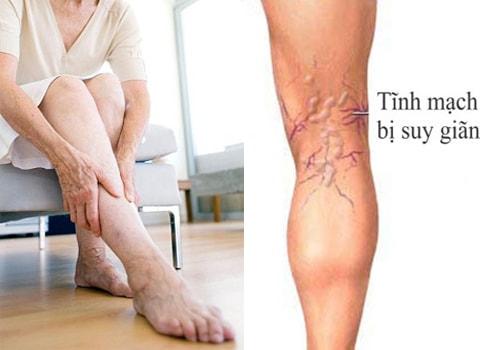 Dấu hiệu thường gặp của bệnh suy giãn tĩnh mạch chân