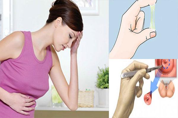 Điều trị viêm lộ tuyến cổ tử cung như thế nào - căn bệnh nguy hiểm